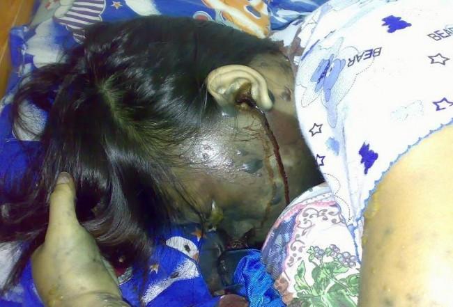 Asik Tertidur Karena Headset Sambil di Cas, Kepalanya Meleduk